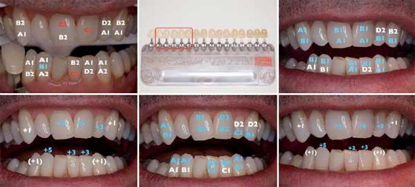 contrensubshea: Zahnfarbe a2 bilder
